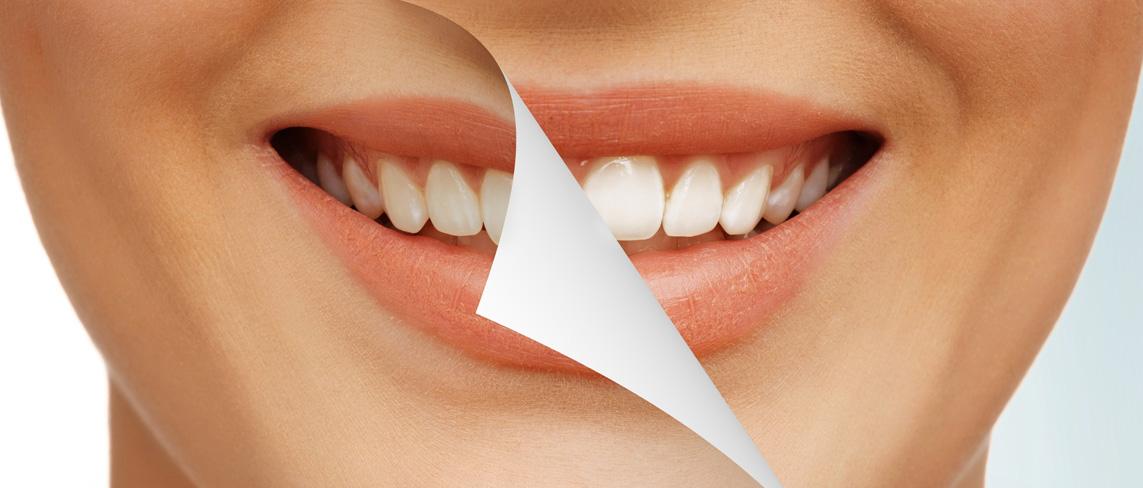 Профессиональная гигиена полости рта при записи с сайта - 3000 рублей